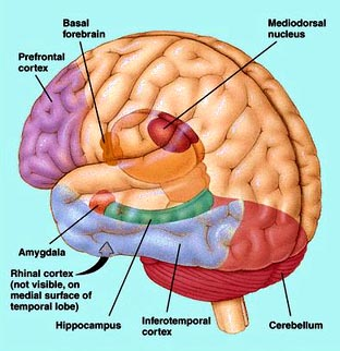 picture-of-brain2